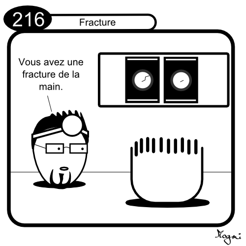 216 - Fracture